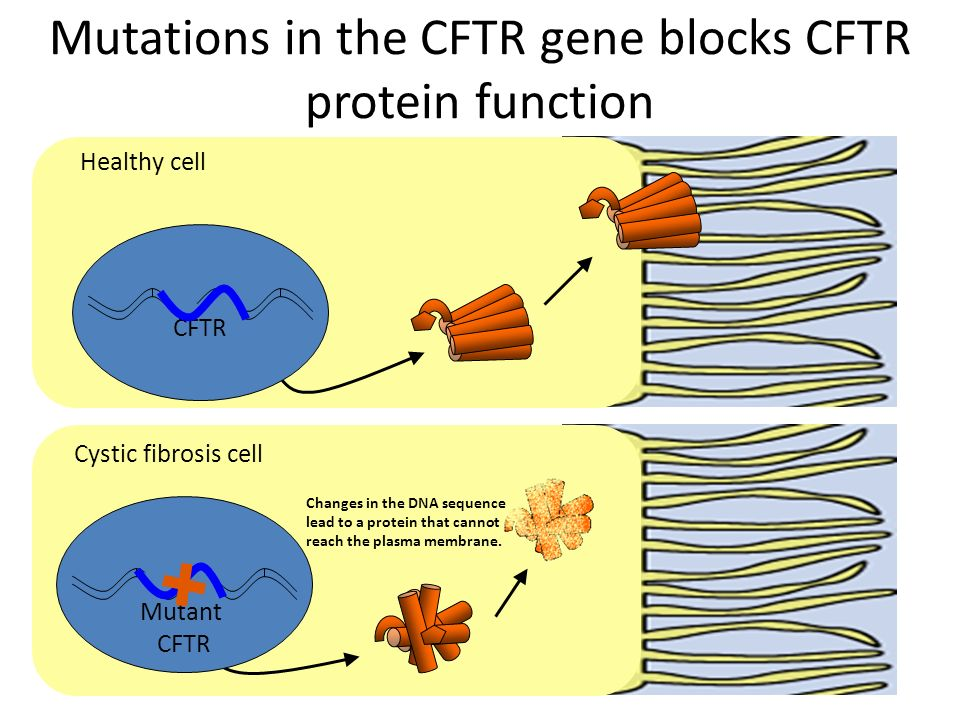 Mutations in the CFTR gene blocks CFTR protein function CFTR Mutant CFTR Healthy cell Cystic fibrosis cell Changes in the DNA sequence lead to a prote