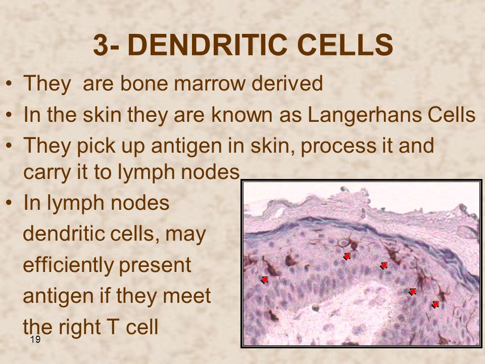 19 3- DENDRITIC CELLS They are bone marrow derived In the skin they are known as Langerhans Cells They pick up antigen in skin, process it and carry i