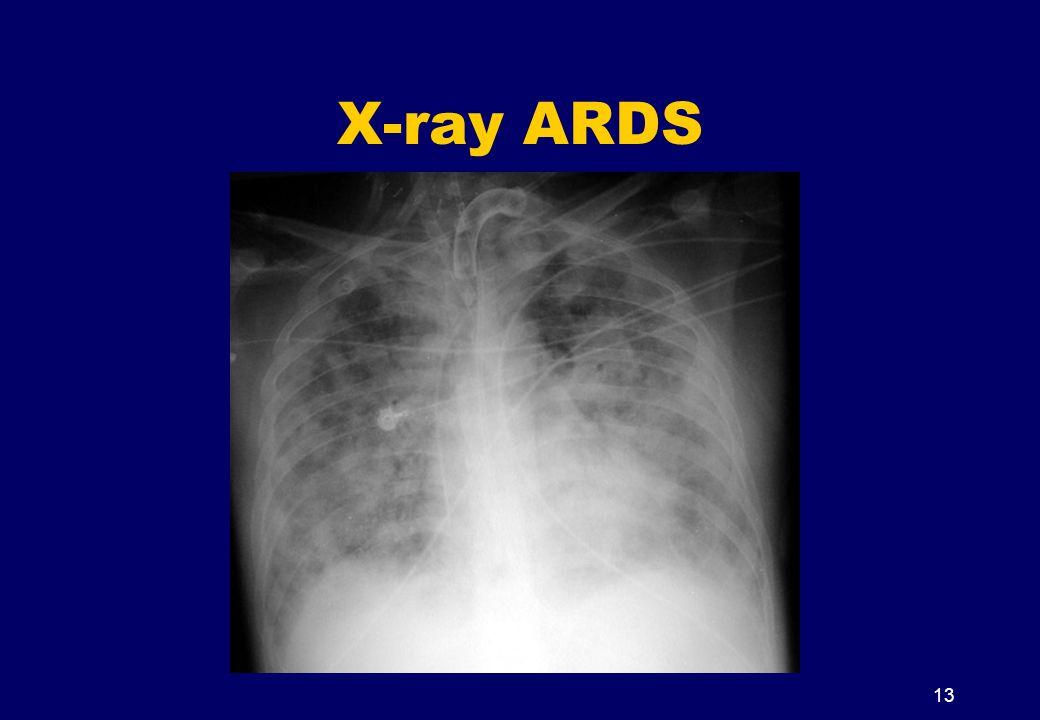 X-ray ARDS 13