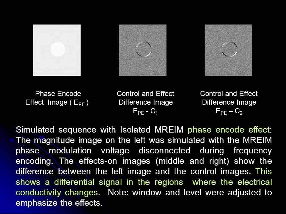 Simulated sequence with Isolated MREIM phase encode effect: The magnitude image on the left was simulated with the MREIM phase modulation voltage disconnected during frequency encoding.