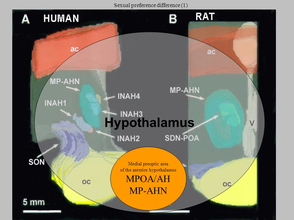 Hypothalamus Medial preoptic area of the anterior hypothalamus MPOA/AH MP-AHN Sexual preference difference (1)