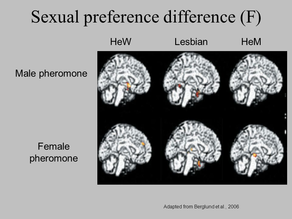 HeW Lesbian HeM Male pheromone Female pheromone Sexual preference difference (F) Adapted from Berglund et al., 2006