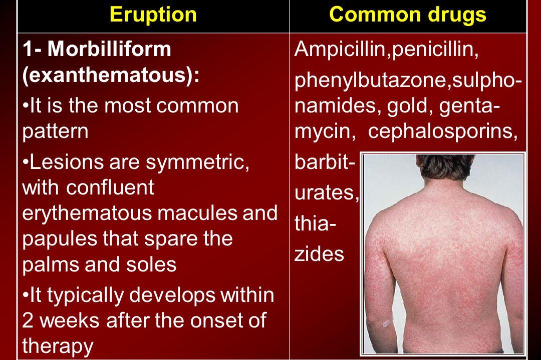 Common drugsEruption Ampicillin,penicillin, phenylbutazone,sulpho- namides, gold, genta- mycin, cephalosporins, barbit- urates, thia- zides 1- Morbill