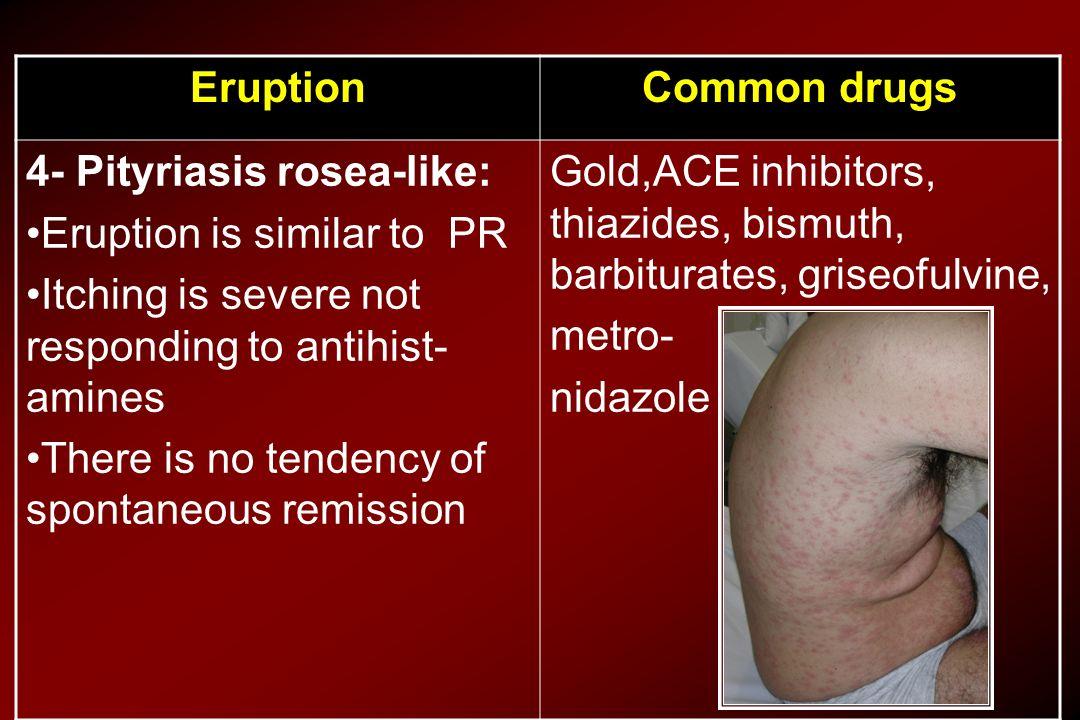 Common drugsEruption Gold,ACE inhibitors, thiazides, bismuth, barbiturates, griseofulvine, metro- nidazole 4- Pityriasis rosea-like: Eruption is simil