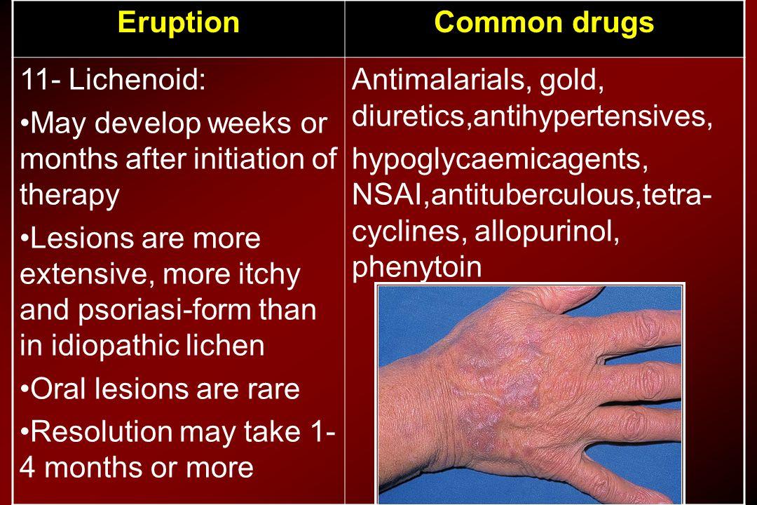 Common drugsEruption Antimalarials, gold, diuretics,antihypertensives, hypoglycaemicagents, NSAI,antituberculous,tetra- cyclines, allopurinol, phenyto