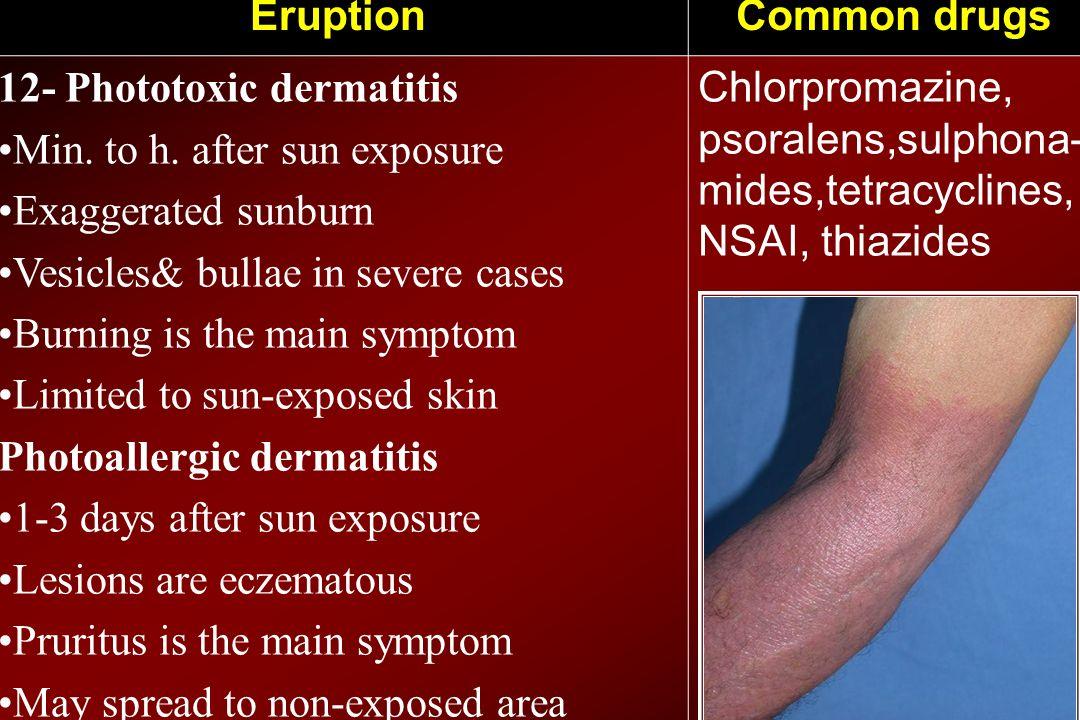 Common drugsEruption Chlorpromazine, psoralens,sulphona- mides,tetracyclines, NSAI, thiazides 12- Phototoxic dermatitis Min. to h. after sun exposure