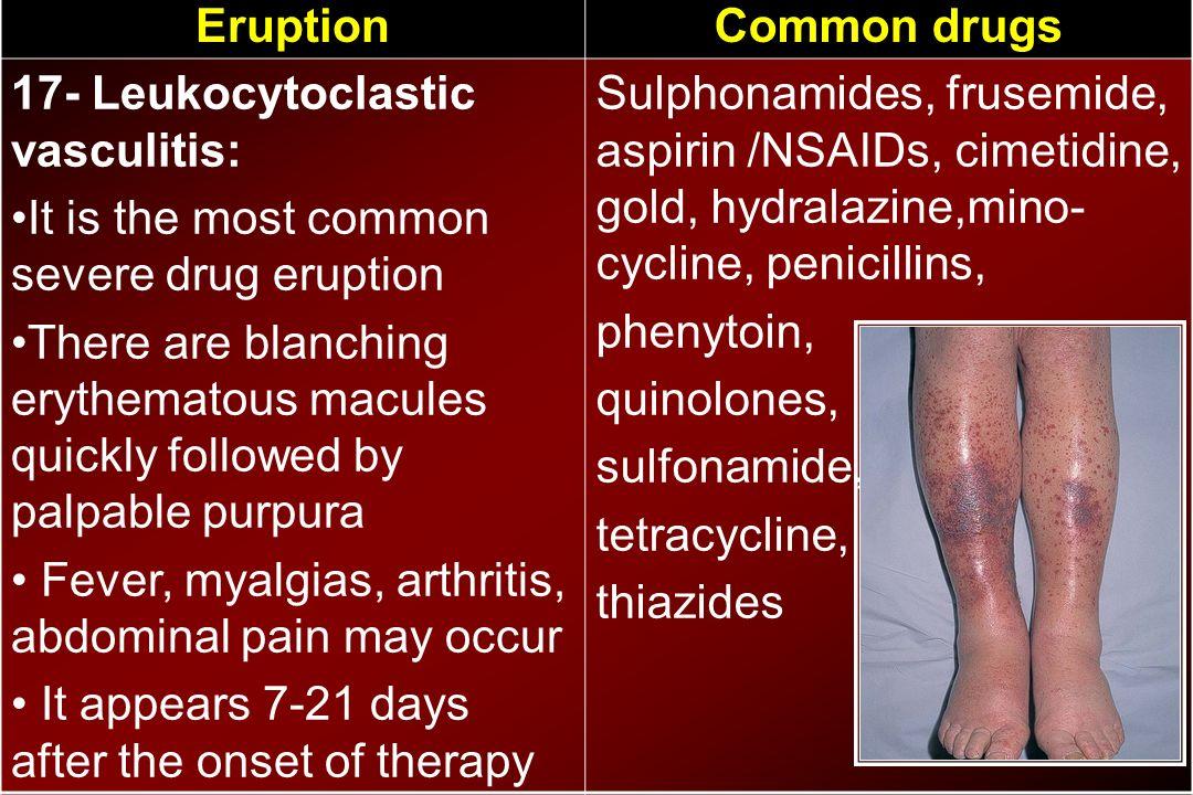 Common drugsEruption Sulphonamides, frusemide, aspirin /NSAIDs, cimetidine, gold, hydralazine,mino- cycline, penicillins, phenytoin, quinolones, sulfo