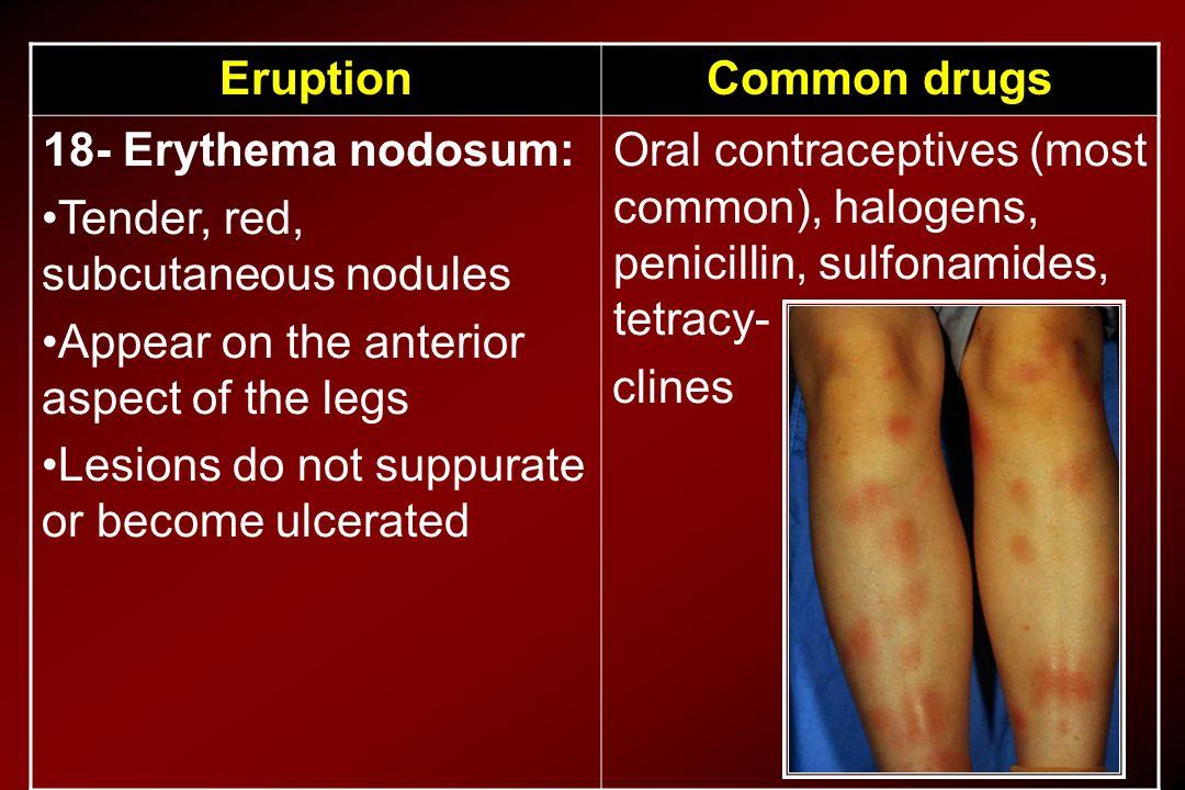 Common drugsEruption Oral contraceptives (most common), halogens, penicillin, sulfonamides, tetracy- clines 18- Erythema nodosum: Tender, red, subcuta