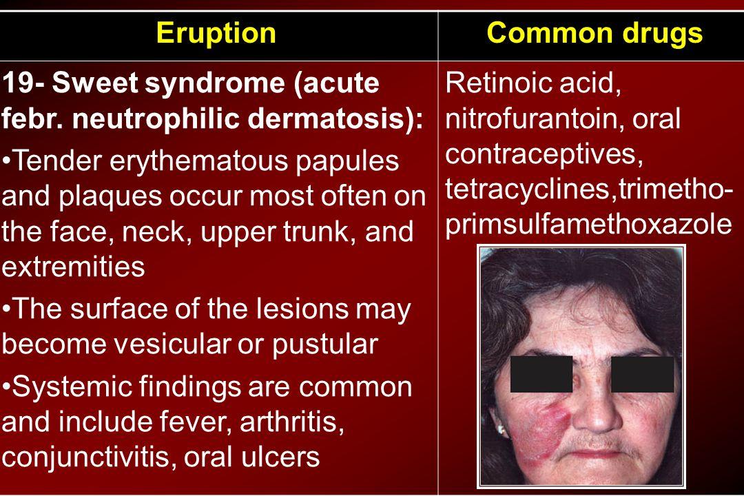 Common drugsEruption Retinoic acid, nitrofurantoin, oral contraceptives, tetracyclines,trimetho- primsulfamethoxazole 19- Sweet syndrome (acute febr.