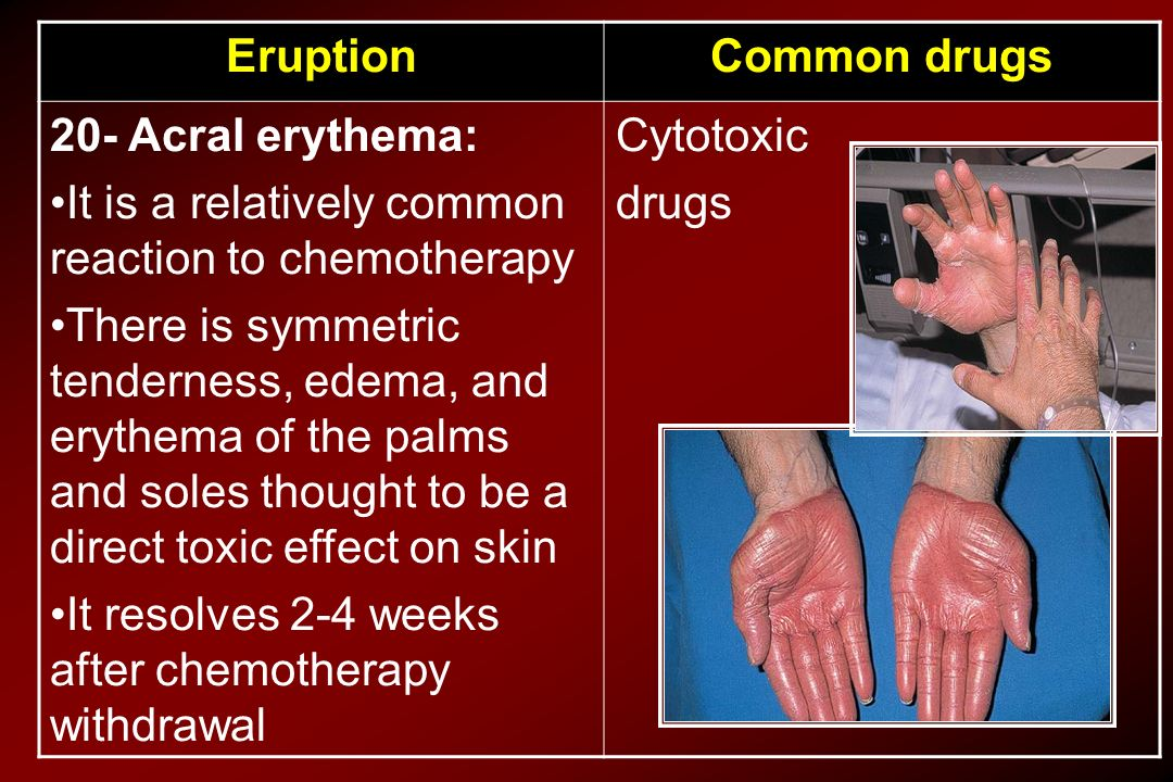 Common drugsEruption Cytotoxic drugs 20- Acral erythema: It is a relatively common reaction to chemotherapy There is symmetric tenderness, edema, and