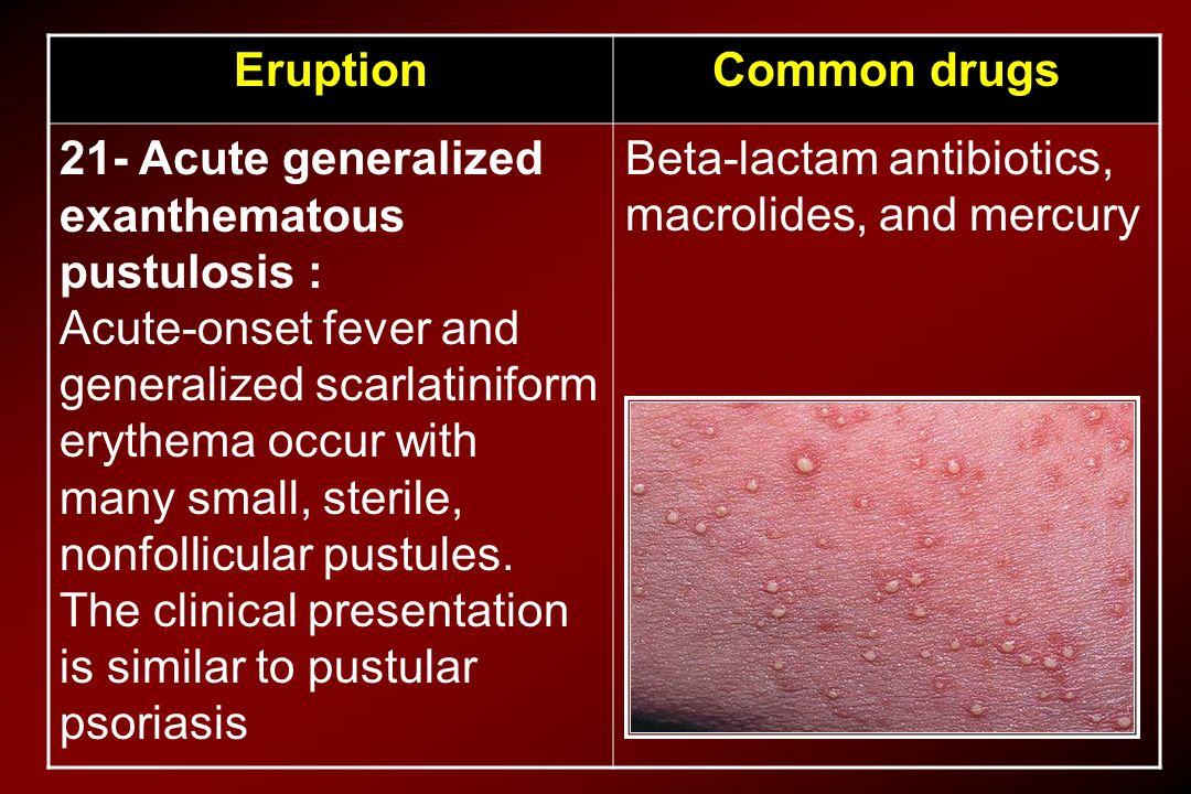 Common drugsEruption Beta-lactam antibiotics, macrolides, and mercury 21- Acute generalized exanthematous pustulosis : Acute-onset fever and generaliz