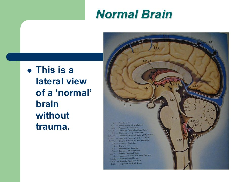 Normal Brain This is a lateral view of a normal brain without trauma.