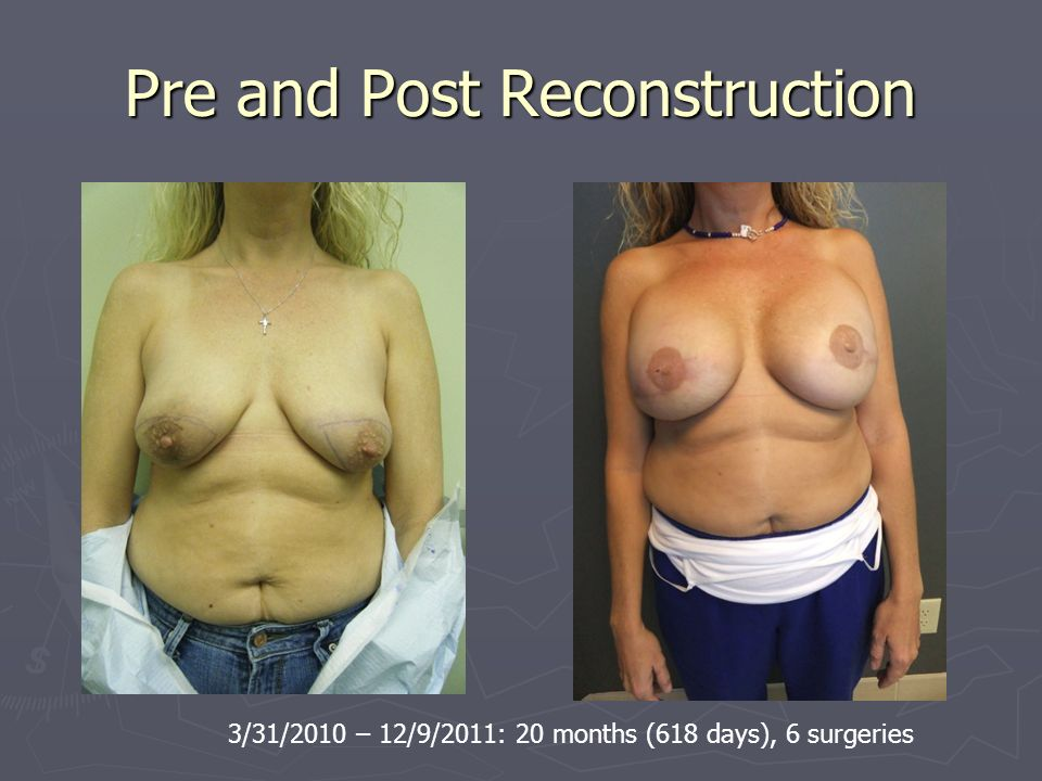 Pre and Post Reconstruction 3/31/2010 – 12/9/2011: 20 months (618 days), 6 surgeries