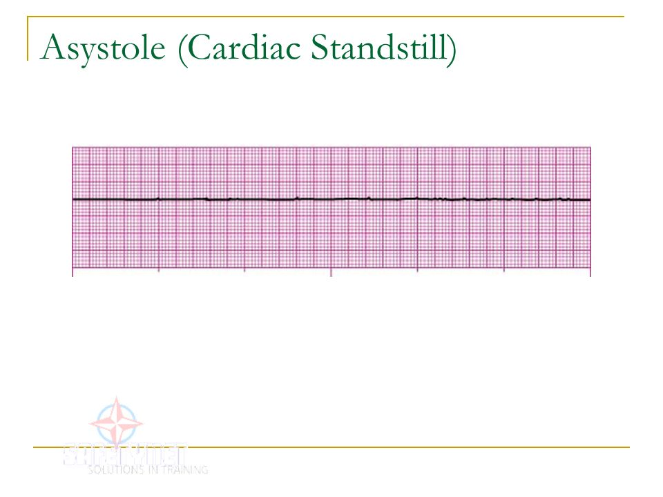 P Wave Asystole Asystole  Cardiac Standstill
