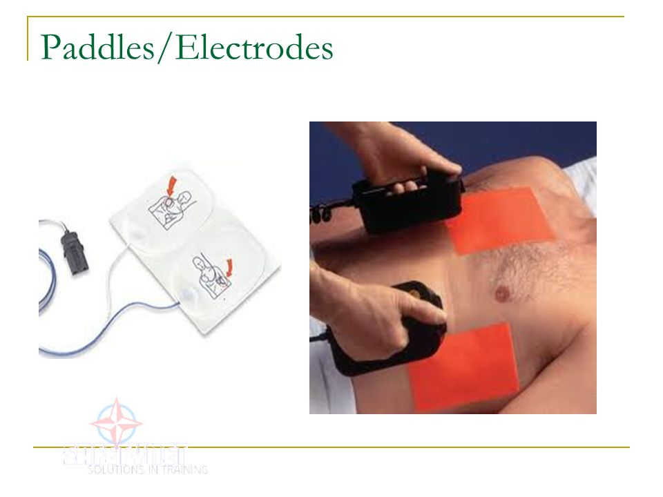 Paddles/Electrodes