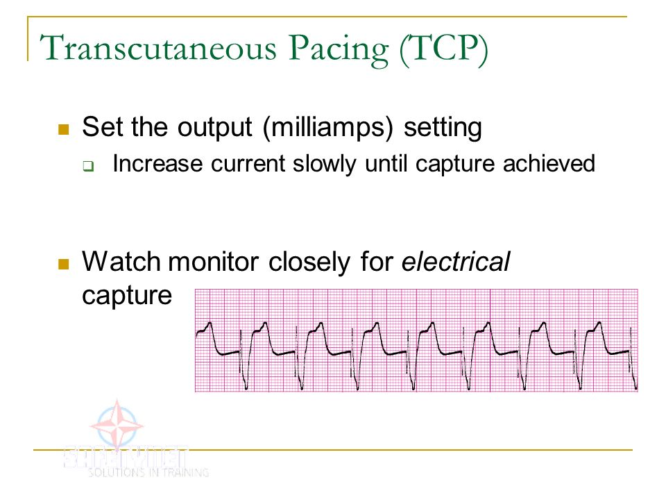 Transcutaneous Pacing (TCP) Set the output (milliamps) setting Increase current slowly until capture achieved Watch monitor closely for electrical cap