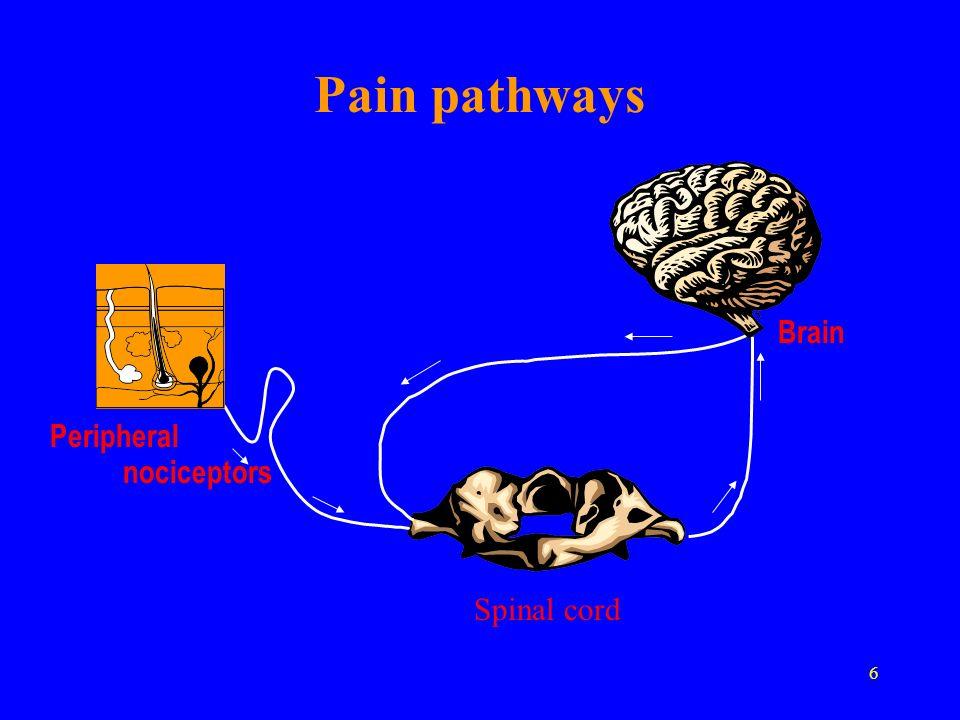 27 Analgesic ladder: multimodal modification I IIIII Pain Intensity non-opioids + non-invasive measures opioids + non-invasive + simple invasive measures opioids + non-invasive + super invasive measures
