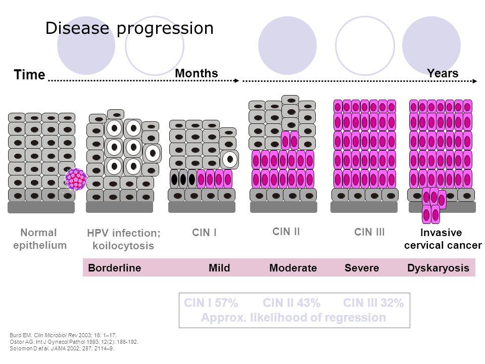 Disease progression Invasive cervical cancer Time Years Months Normal epithelium HPV infection; koilocytosis CIN I CIN II CIN III CIN I 57% CIN II 43%
