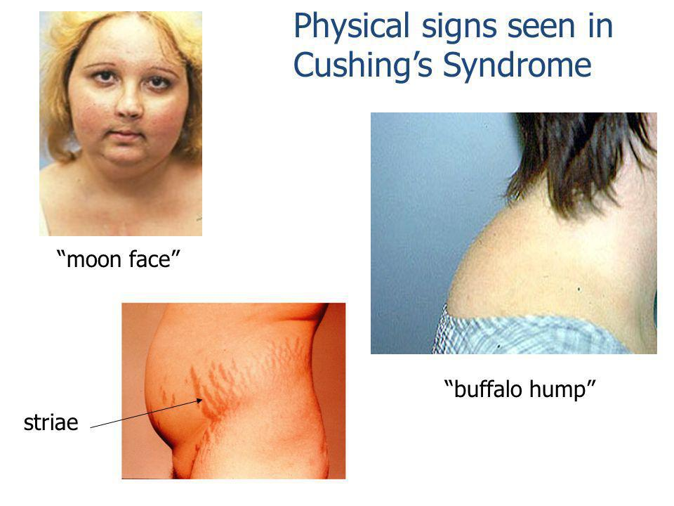 Physical signs seen in Cushings Syndrome striae moon face buffalo hump
