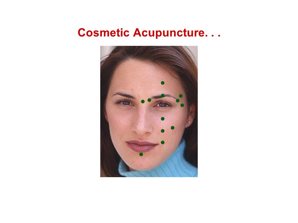 Cosmetic Acupuncture...