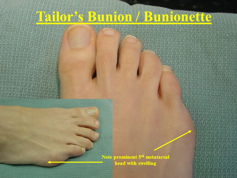 Note prominent 5 th metatarsal head with swelling Tailors Bunion / Bunionette