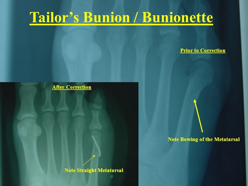 Note Bowing of the Metatarsal Note Straight Metatarsal After Correction Prior to Correction Tailors Bunion / Bunionette