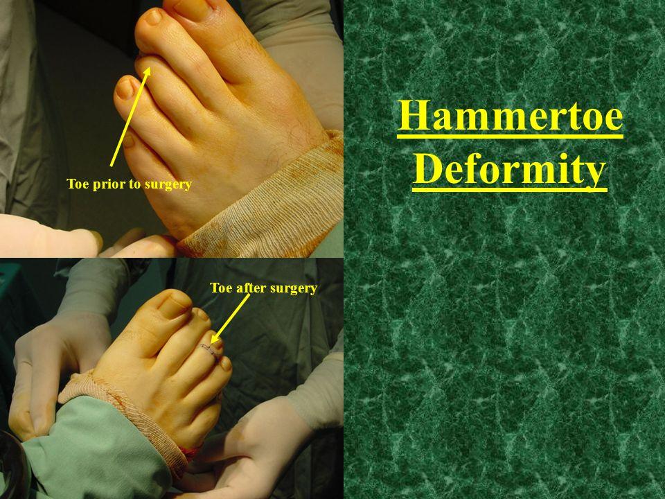 Toe prior to surgery Toe after surgery Hammertoe Deformity
