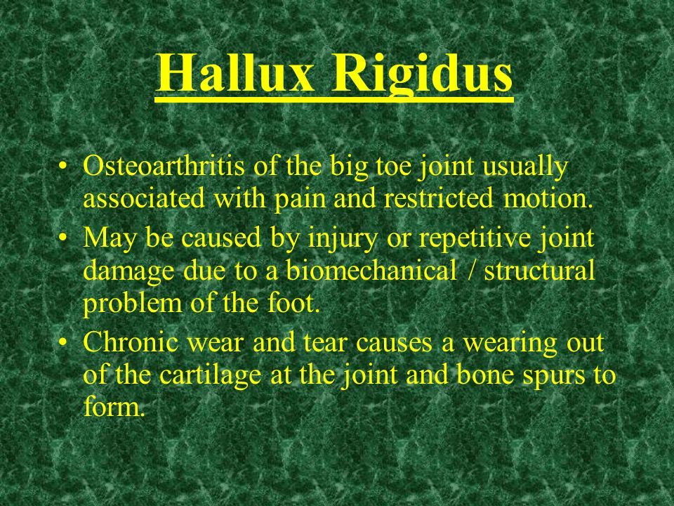 Hallux Rigidus Osteoarthritis of the big toe joint usually associated with pain and restricted motion. May be caused by injury or repetitive joint dam