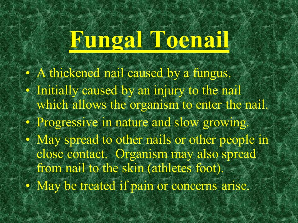 Fungal Toenail A thickened nail caused by a fungus. Initially caused by an injury to the nail which allows the organism to enter the nail. Progressive