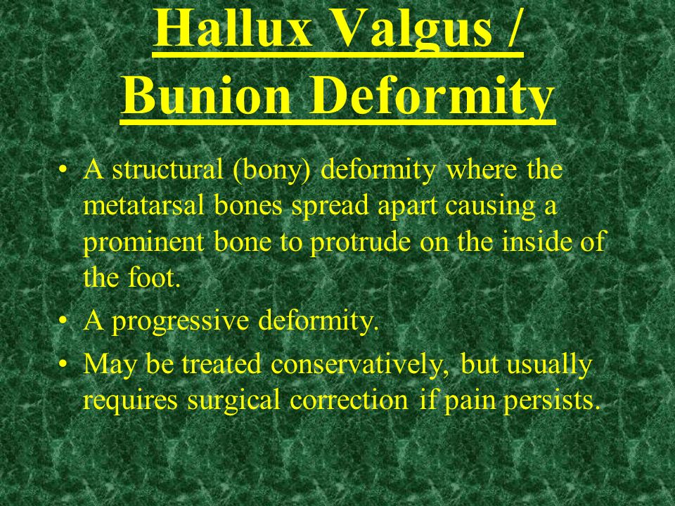 Hallux Valgus / Bunion Deformity A structural (bony) deformity where the metatarsal bones spread apart causing a prominent bone to protrude on the ins
