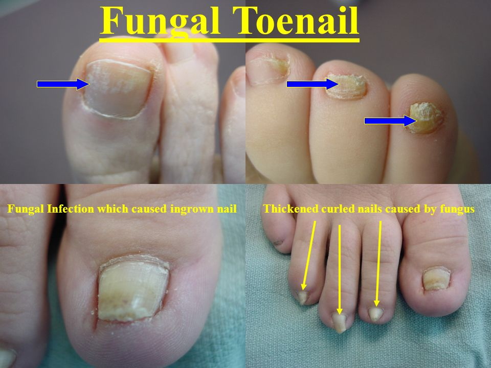 Fungal Toenail Fungal Infection which caused ingrown nailThickened curled nails caused by fungus