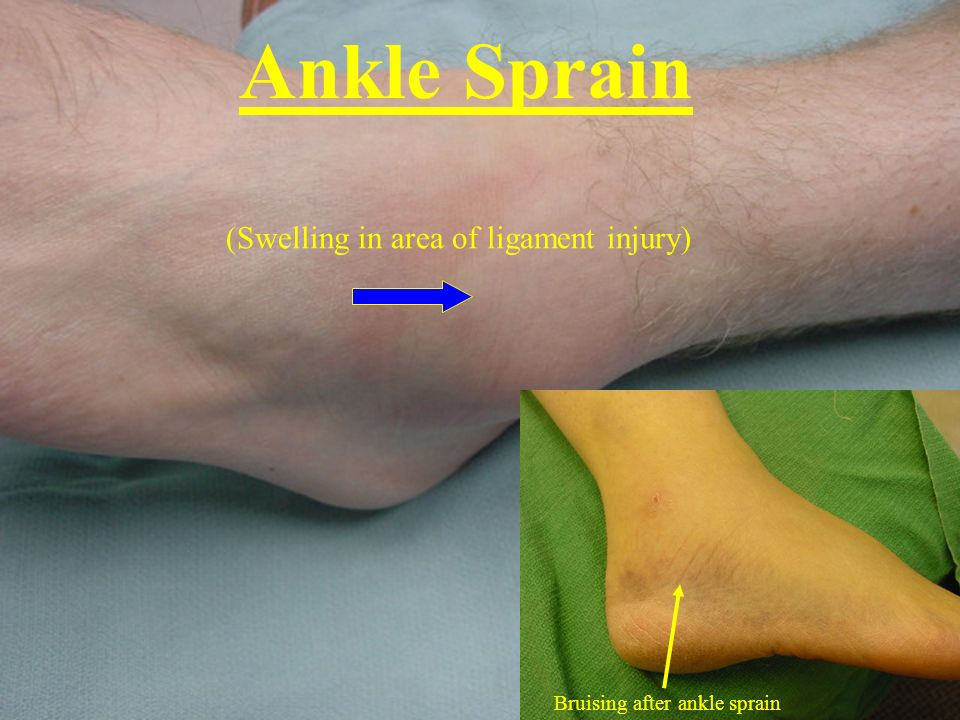 Ankle Sprain (Swelling in area of ligament injury) Bruising after ankle sprain