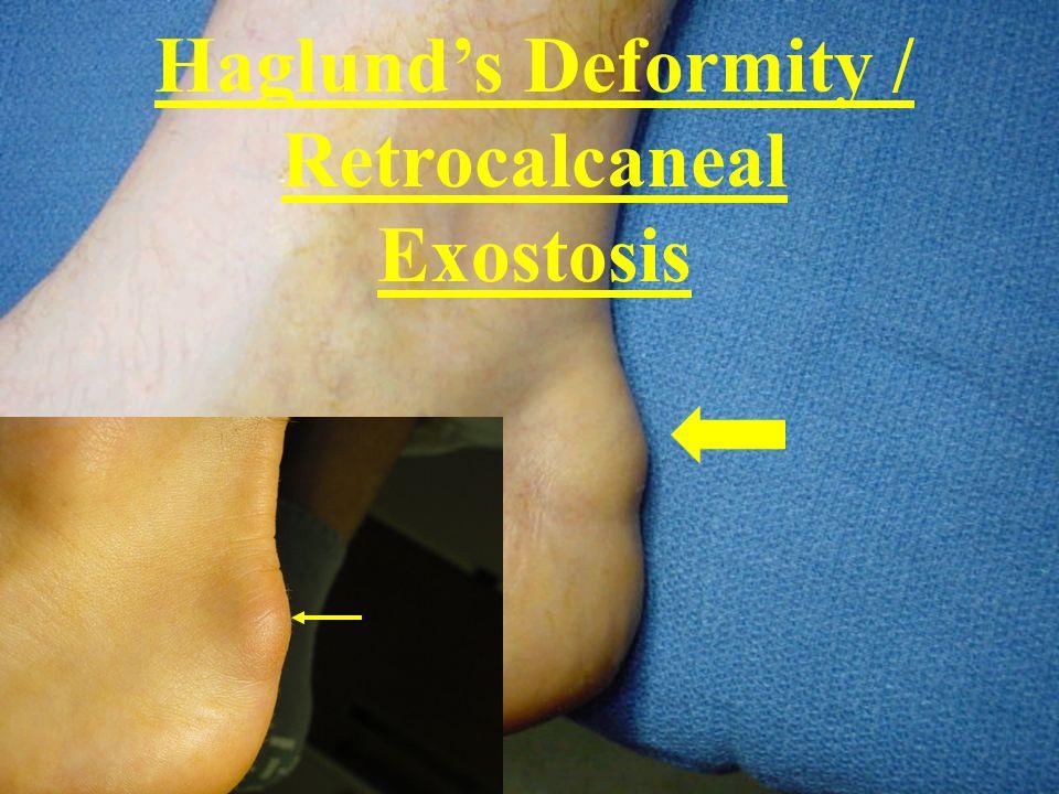 Haglunds Deformity / Retrocalcaneal Exostosis