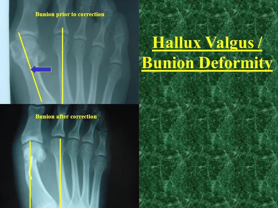 Bunion prior to correction Bunion after correction Hallux Valgus / Bunion Deformity