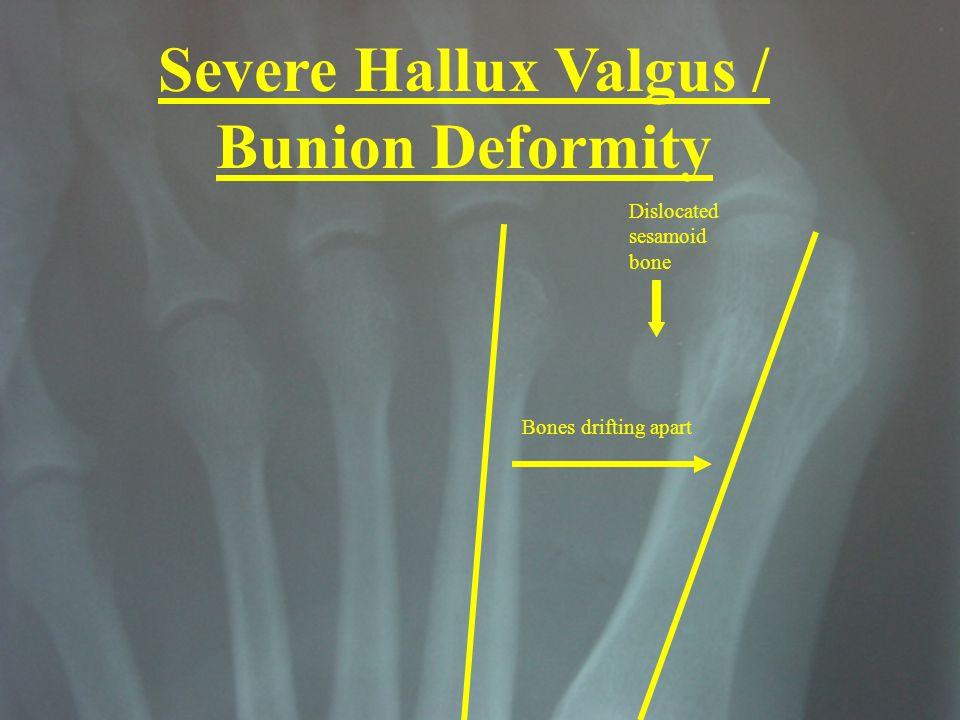Dislocated sesamoid bone Bones drifting apart