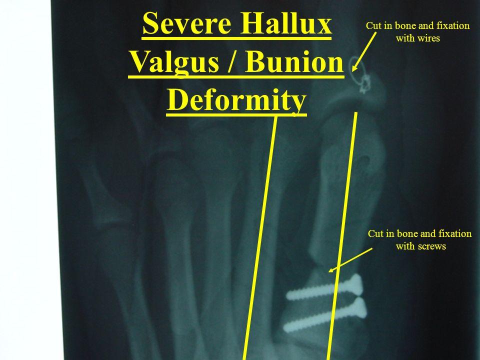 Severe Hallux Valgus / Bunion Deformity Cut in bone and fixation with screws Cut in bone and fixation with wires