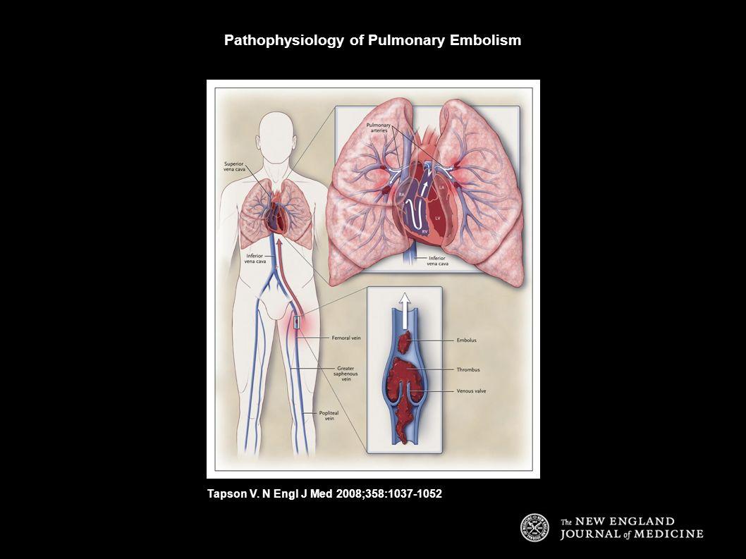 Pathophysiology of Pulmonary Embolism Tapson V. N Engl J Med 2008;358:1037-1052