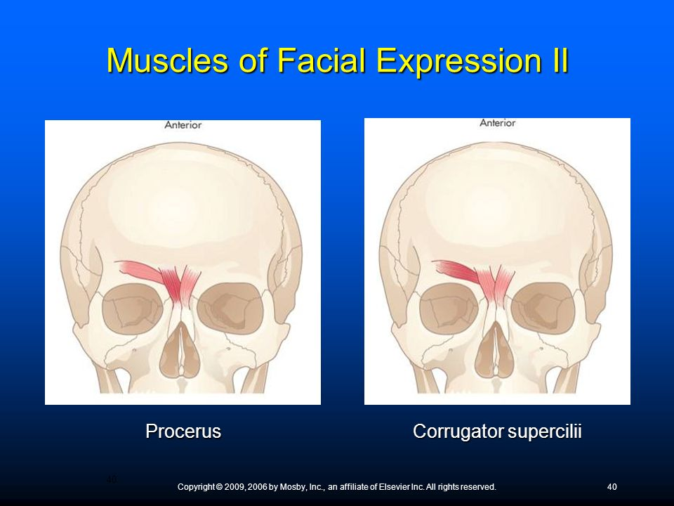 Copyright © 2009, 2006 by Mosby, Inc., an affiliate of Elsevier Inc. All rights reserved.40 Procerus Corrugator supercilii Muscles of Facial Expressio