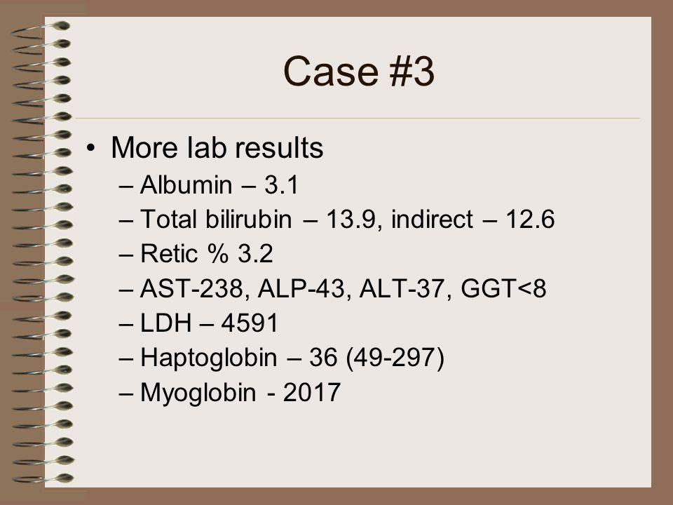 Case #3 More lab results –Albumin – 3.1 –Total bilirubin – 13.9, indirect – 12.6 –Retic % 3.2 –AST-238, ALP-43, ALT-37, GGT<8 –LDH – 4591 –Haptoglobin