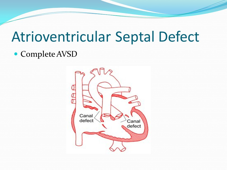 Atrioventricular Septal Defect Complete Form Low primum ASD continuous with a posterior VSD. Cleft in both septal leaflets of TV/MV. Results in a larg