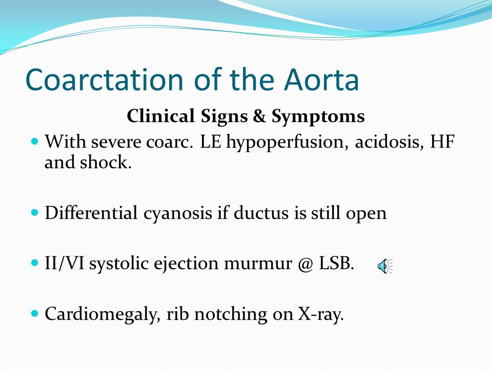 Coarctation of the Aorta Clinical Signs & Symptoms Classic signs of coarctation are diminution or absence of femoral pulses. Higher BP in the upper ex