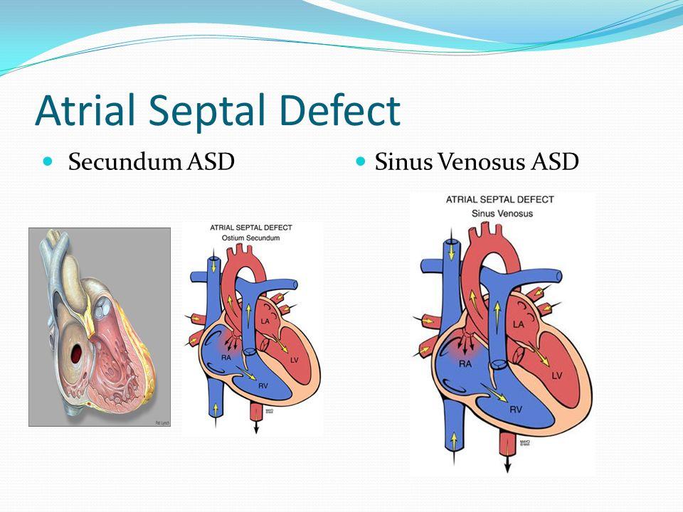 Atrial Septal Defect Secundum ASD Sinus Venosus ASD