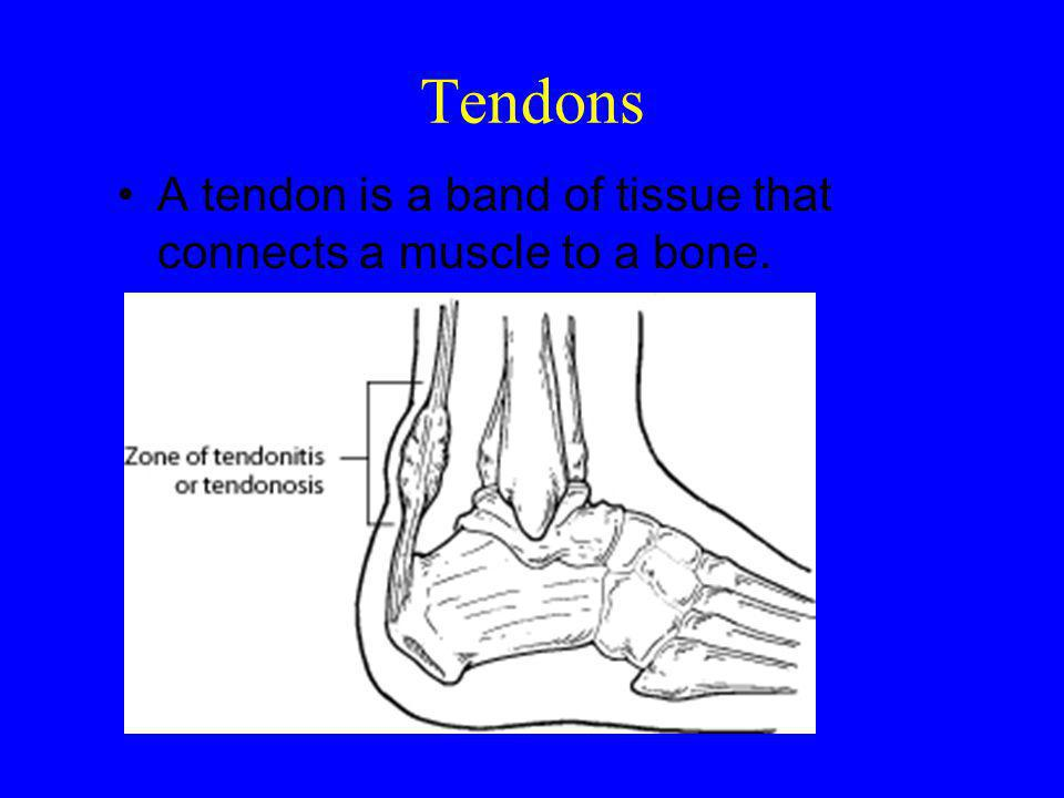Tendons A tendon is a band of tissue that connects a muscle to a bone.