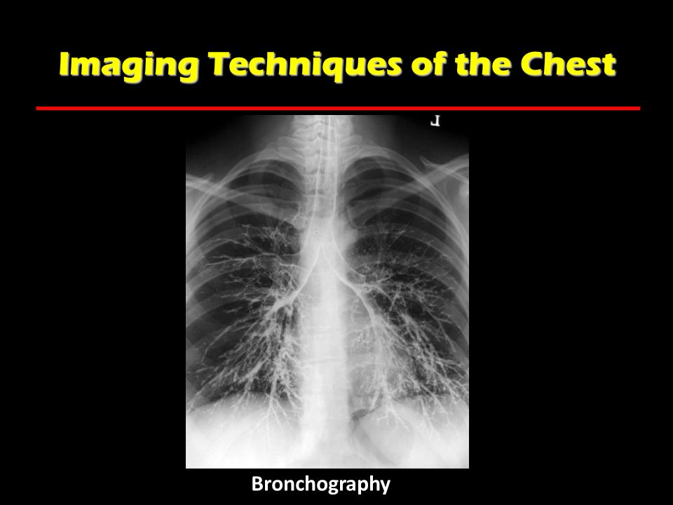 Imaging Techniques of the Chest Bronchography
