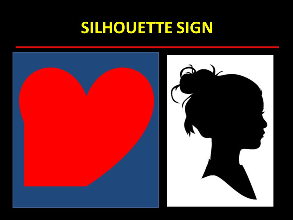 SILHOUETTE SIGN