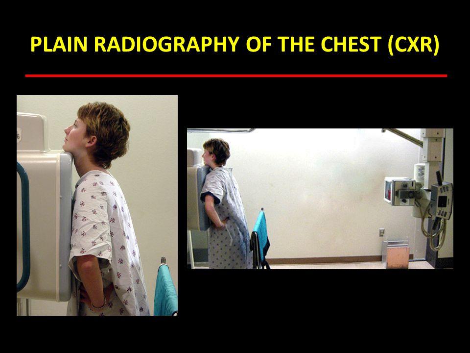 CT Scan Lung Window Mediastinal Window