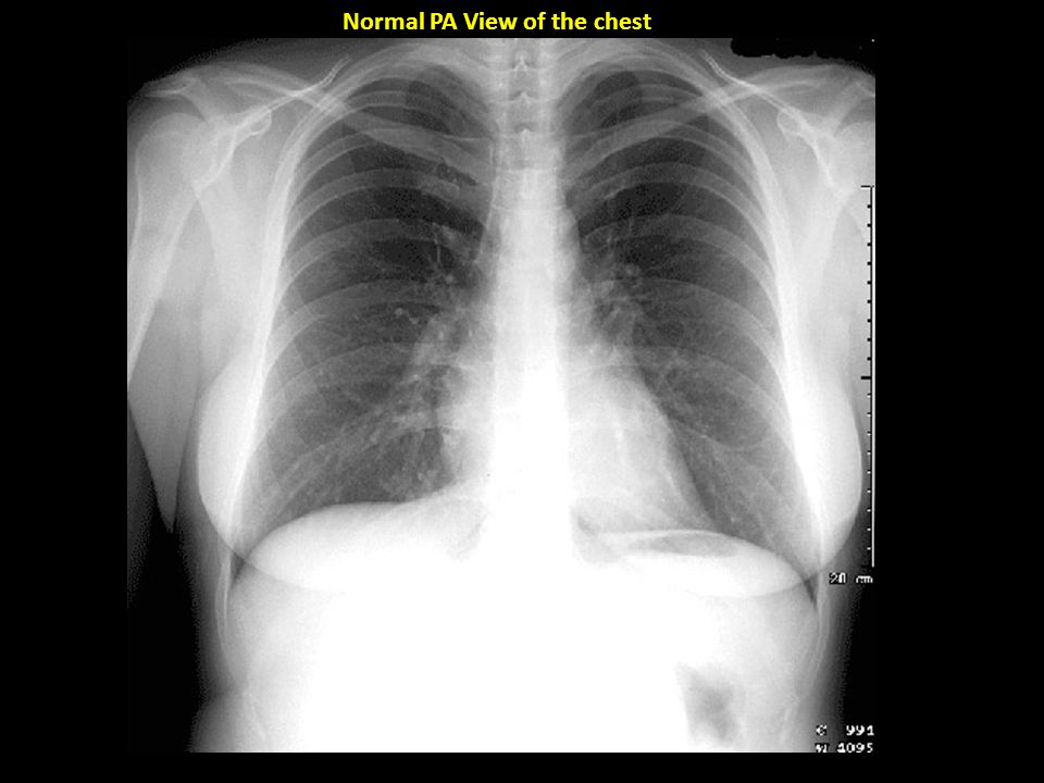 Imaging Techniques of the Chest MRI