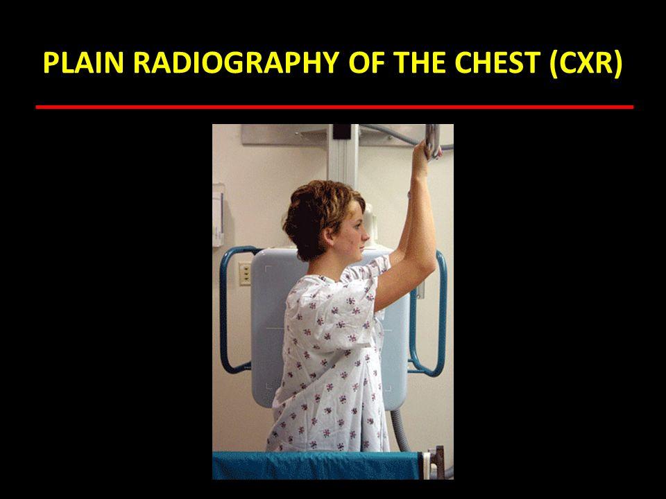 Pulmonary Angiography
