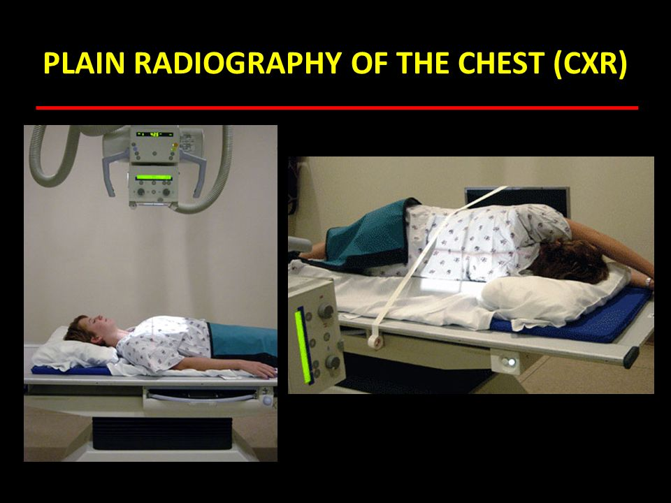 ANALYSIS OF THE X-RAY OF THE CHEST Does the x-ray belong to the correct patient.