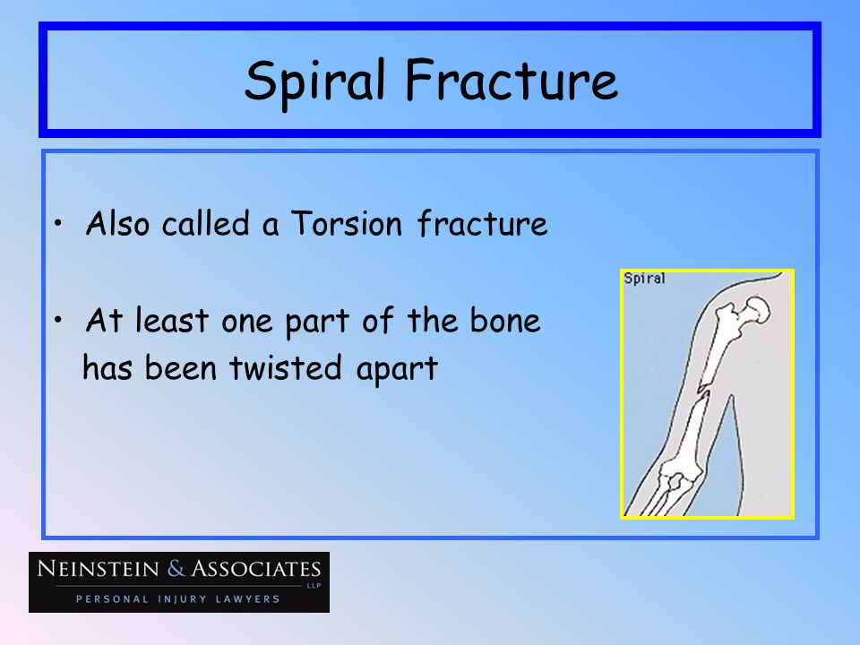 Spiral Fracture Also called a Torsion fracture At least one part of the bone has been twisted apart